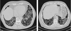 Fibrosi polmonare idiopatica